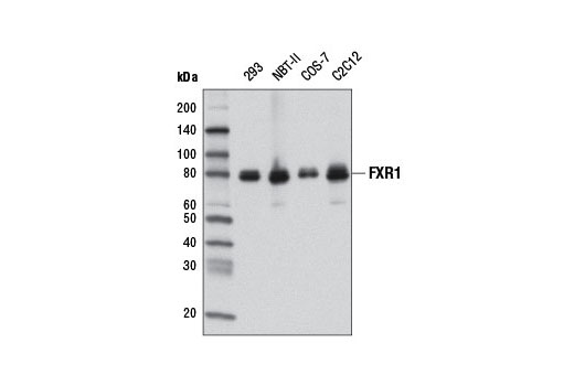 Image 1: Fragile X/FMRP Signaling Pathway Antibody Sampler Kit