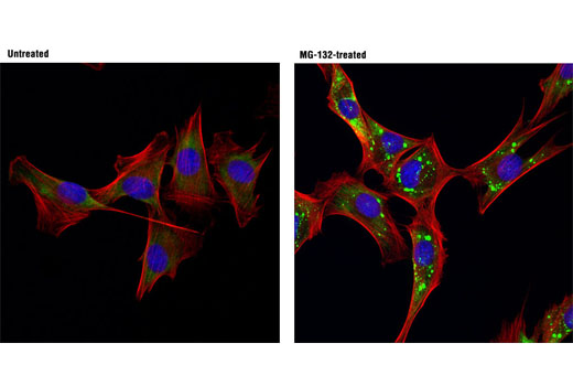 Image 3: Fragile X/FMRP Signaling Pathway Antibody Sampler Kit