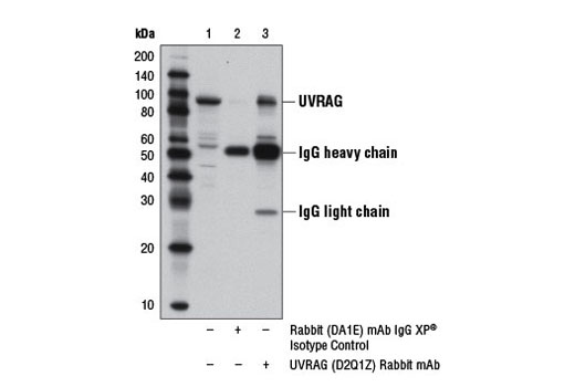 Image 3: Autophagy Vesicle Nucleation Antibody Sampler Kit