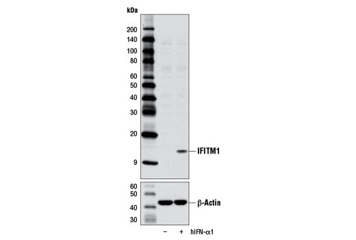 Image 3: Host Cell Viral Restriction Factor Antibody Sampler Kit
