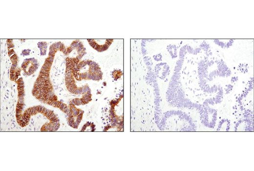 Image 7: Coronavirus Host Cell Attachment and Entry Antibody Sampler Kit