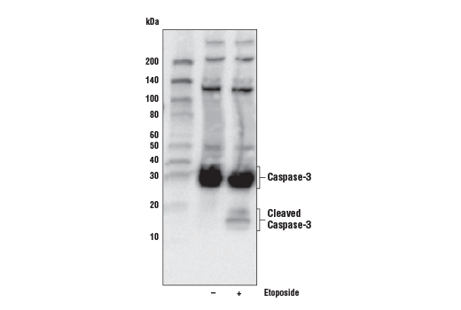 Image 3: Jurkat Apoptosis Cell Extracts (etoposide)