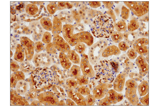 Image 9: Mouse Reactive Cell Death and Autophagy Antibody Sampler Kit