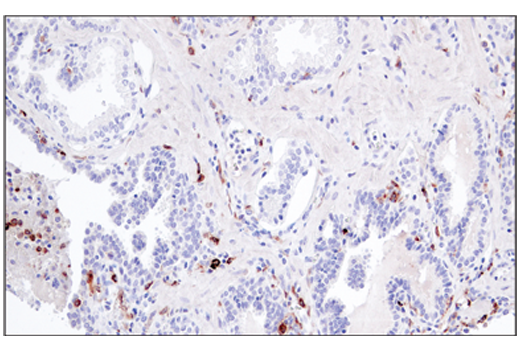 Image 6: Suppressive Myeloid Cell Phenotyping IHC Antibody Sampler Kit