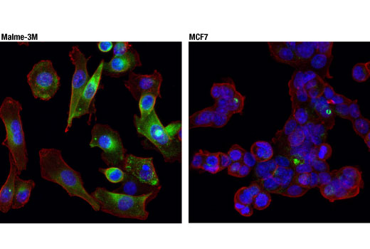Image 6: Microglia Neurodegeneration Module Antibody Sampler Kit
