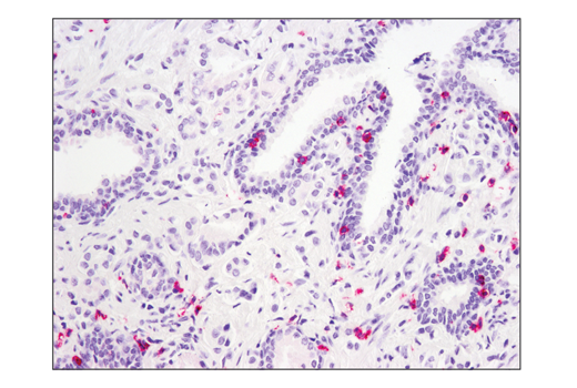 Immunohistochemistry Image 2: SignalStain® Boost IHC Detection Reagent (AP, Mouse)