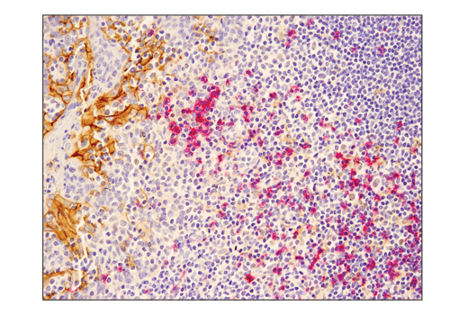 Immunohistochemistry Image 3: SignalStain® Boost IHC Detection Reagent (AP, Mouse)