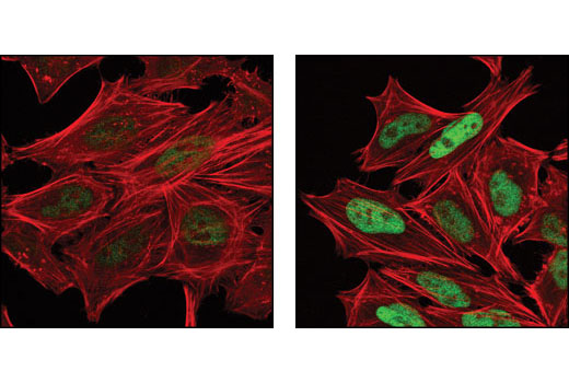 Image 15: PhosphoPlus® c-Jun (Ser63) and c-Jun (Ser73) Antibody Kit