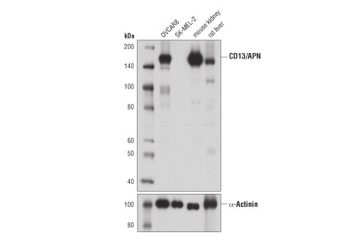 Image 16: Coronavirus Host Cell Attachment and Entry Antibody Sampler Kit