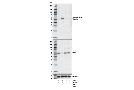Image 14: Mouse Reactive Cell Death and Autophagy Antibody Sampler Kit