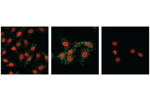 Image 15: Mouse Reactive Cell Death and Autophagy Antibody Sampler Kit