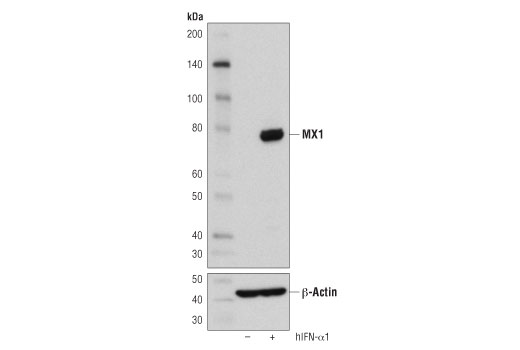 Image 17: Host Cell Viral Restriction Factor Antibody Sampler Kit