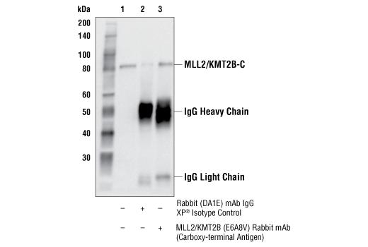 Immunoprecipitation Image 1: MLL2/KMT2B (E6A8V) Rabbit mAb (Carboxy-terminal Antigen)