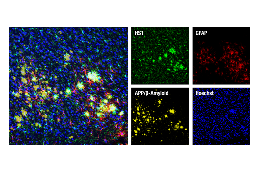 Immunofluorescence Image 1: HS1 (D5A9) XP® Rabbit mAb (Rodent Specific)