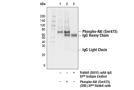 Image 6: ALK Activation Antibody Sampler Kit