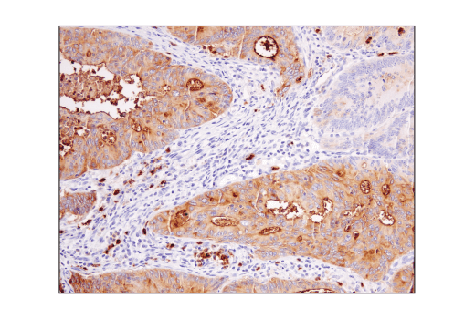 Image 7: Suppressive Myeloid Cell Phenotyping IHC Antibody Sampler Kit