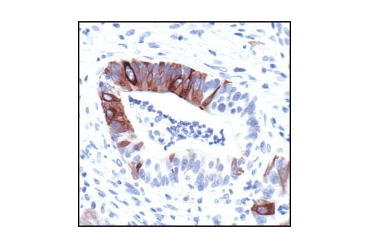 Immunohistochemistry Image 2: Phospho-NF-κB p105 (Ser932) (178F3) Rabbit mAb (IHC Specific)