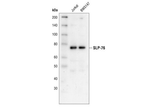 Image 12: T Cell Signaling Antibody Sampler Kit