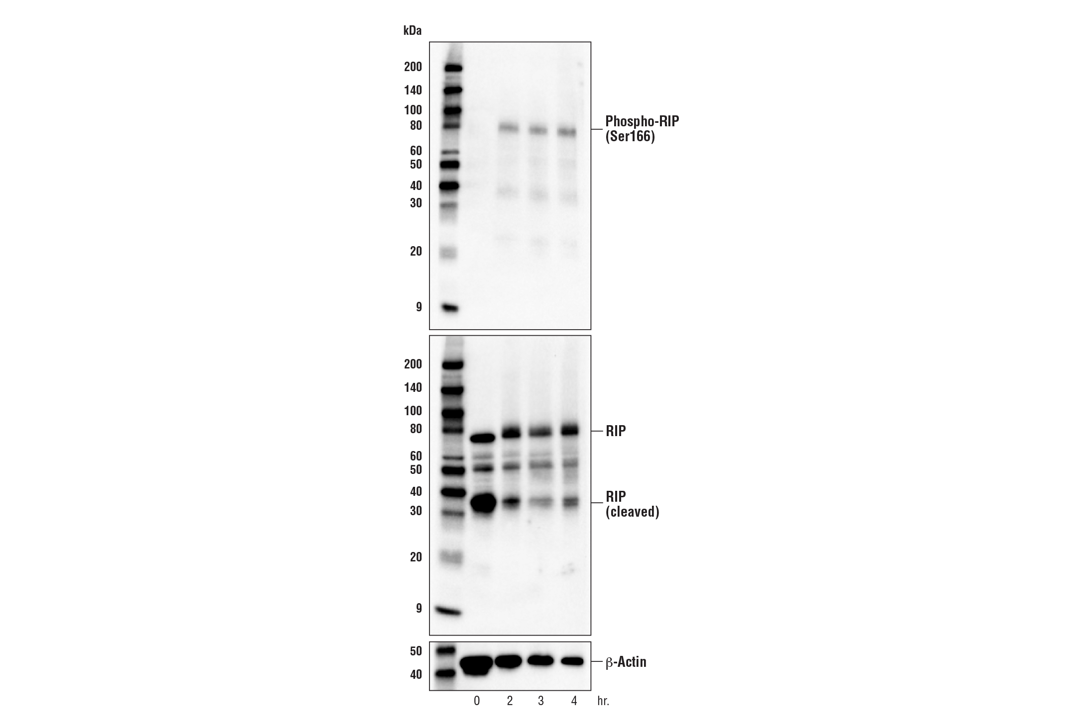 Image 17: Mouse Reactive Cell Death and Autophagy Antibody Sampler Kit
