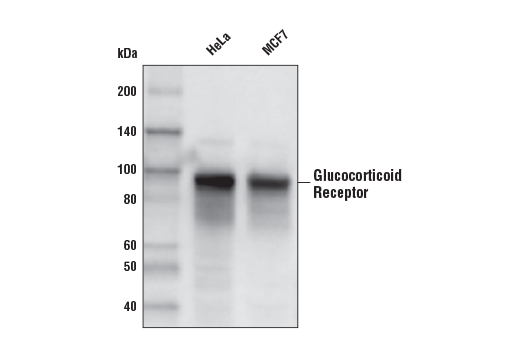 Western Blotting Image 1: Glucocorticoid Receptor (D6H2L) XP® Rabbit mAb (Biotinylated)