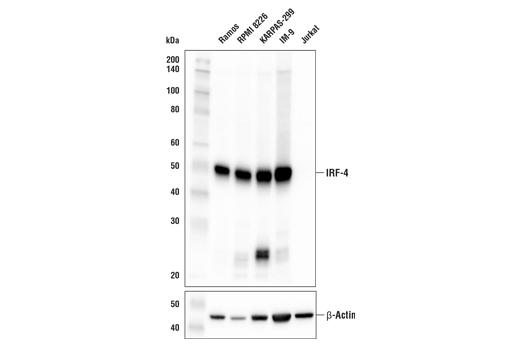 Western Blotting Image 1: IRF-4 (E8H3S) XP® Rabbit mAb