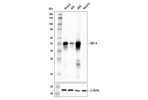 Western Blotting Image 2: IRF-4 (E8H3S) XP® Rabbit mAb