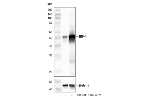 Western Blotting Image 3: IRF-4 (E8H3S) XP® Rabbit mAb