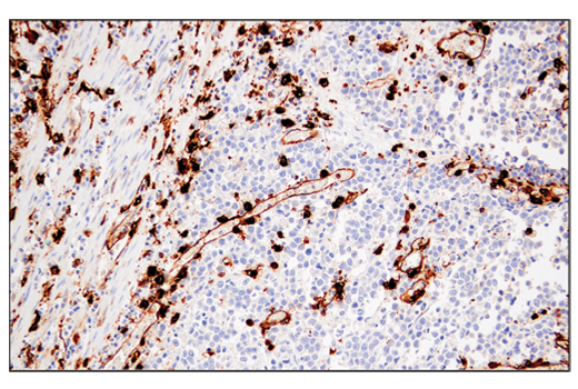 Image 22: Suppressive Myeloid Cell Phenotyping IHC Antibody Sampler Kit