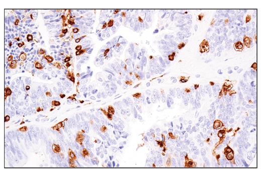 Image 27: Suppressive Myeloid Cell Phenotyping IHC Antibody Sampler Kit