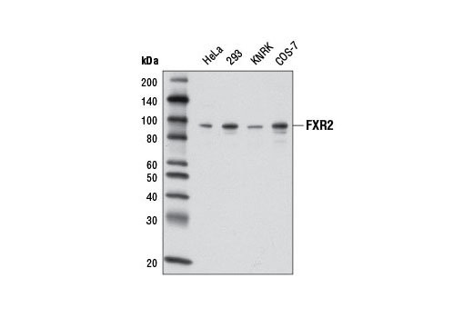 Image 16: Fragile X/FMRP Signaling Pathway Antibody Sampler Kit
