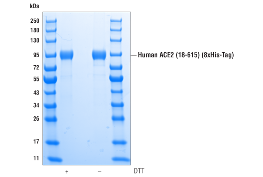 Image 2: Human ACE2 (18-615) Recombinant Protein (8xHis-Tag)