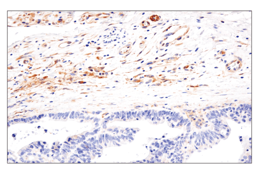 Image 30: Mouse Reactive Cell Death and Autophagy Antibody Sampler Kit