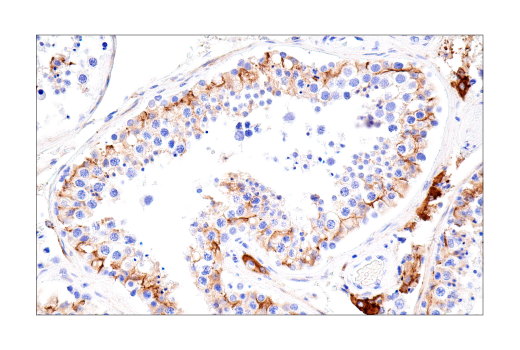 Immunohistochemistry Image 2: Connexin 43 (E7N2R) XP® Rabbit mAb