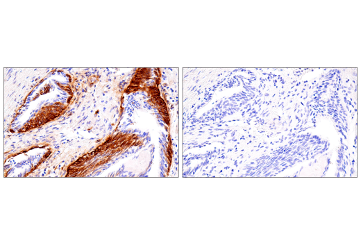 Immunohistochemistry Image 7: Connexin 43 (E7N2R) XP® Rabbit mAb