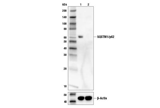 Image 38: Human Reactive Cell Death and Autophagy Antibody Sampler Kit