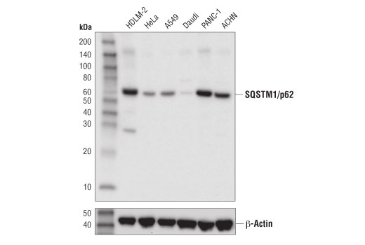 Image 39: Human Reactive Cell Death and Autophagy Antibody Sampler Kit