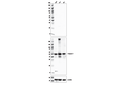 Image 29: Mouse Reactive Inflammasome Antibody Sampler Kit