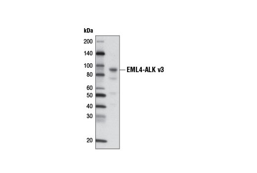 Western Blotting Image 1: ALK (D5F3®) XP® Rabbit mAb (Biotinylated)
