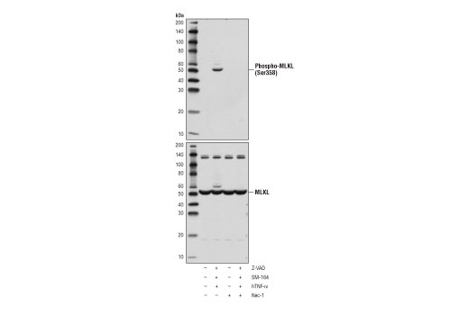 Image 50: Human Reactive Cell Death and Autophagy Antibody Sampler Kit