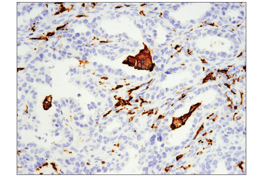 Image 54: Suppressive Myeloid Cell Phenotyping IHC Antibody Sampler Kit