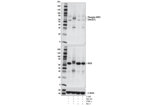 Image 52: Human Reactive Cell Death and Autophagy Antibody Sampler Kit