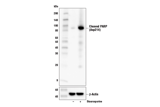Image 42: Mouse Reactive Cell Death and Autophagy Antibody Sampler Kit