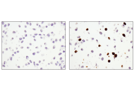 Image 45: Mouse Reactive Cell Death and Autophagy Antibody Sampler Kit