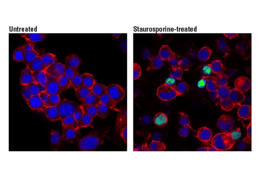 Image 50: Mouse Reactive Cell Death and Autophagy Antibody Sampler Kit