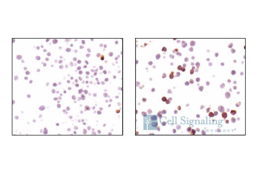 Image 39: β-Amyloid Mouse Model Neuronal Viability IF Sampler Kit