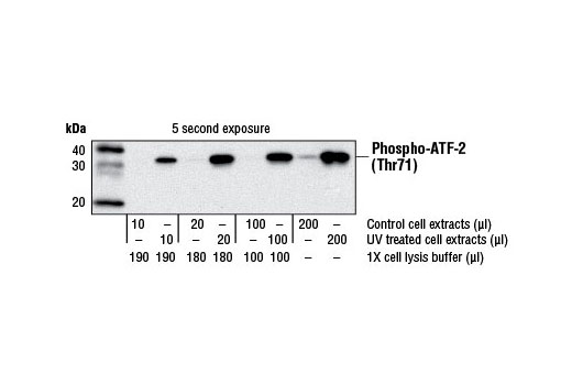 Western Blotting Image 1: p38 MAP Kinase Assay Kit (Nonradioactive)