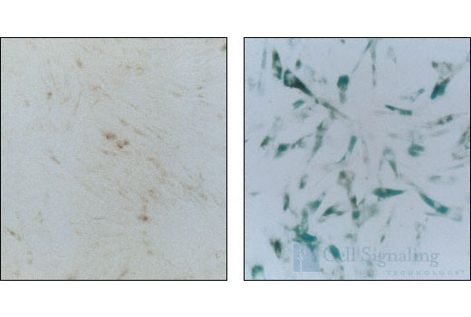 Image 2: Senescence β-Galactosidase Staining Kit