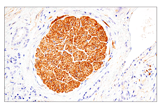 Image 63: Human Immune Cell Phenotyping IHC Antibody Sampler Kit