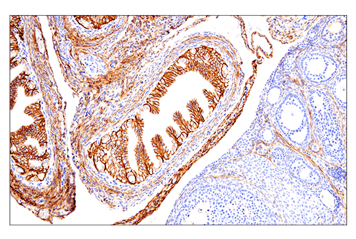 Image 65: Human Immune Cell Phenotyping IHC Antibody Sampler Kit