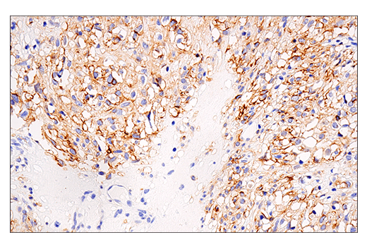 Image 71: Human Immune Cell Phenotyping IHC Antibody Sampler Kit